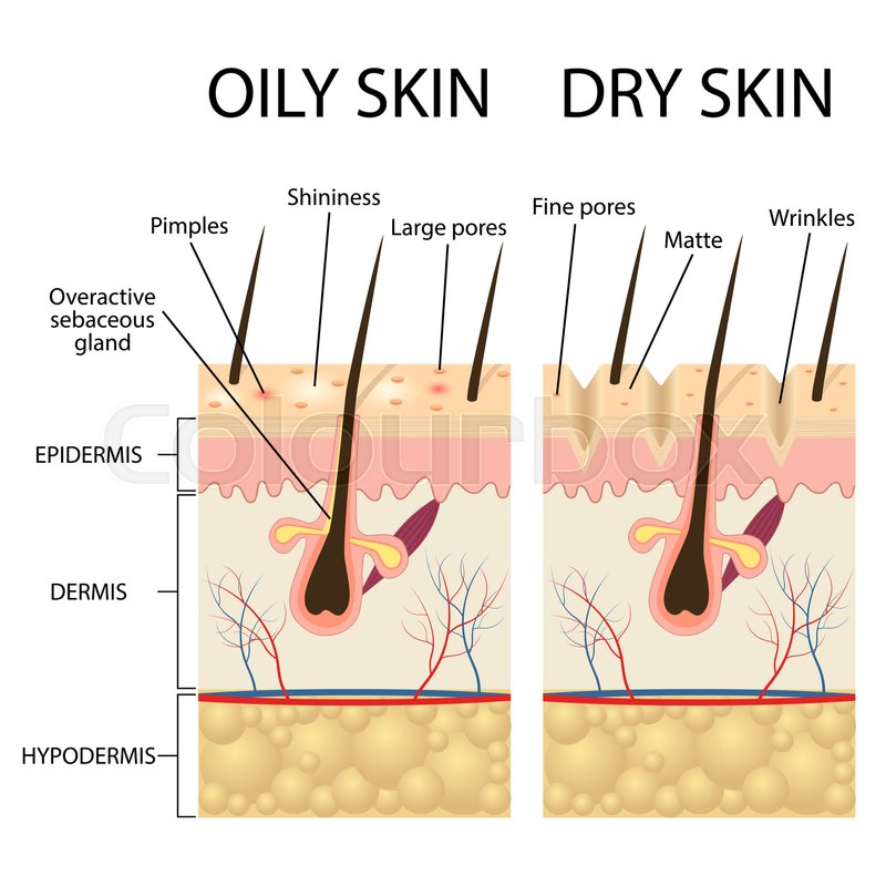 Human Skin types and conditions Dry Stock Vector Colourbox