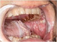 Erkrankungen der Mundhhle und des Rachens (Oropharynx)