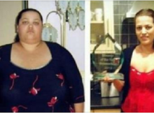 Thinking-That-She-Would-Die-She-Began-Eating-This-And-Lost-Amazing-125-Kilograms