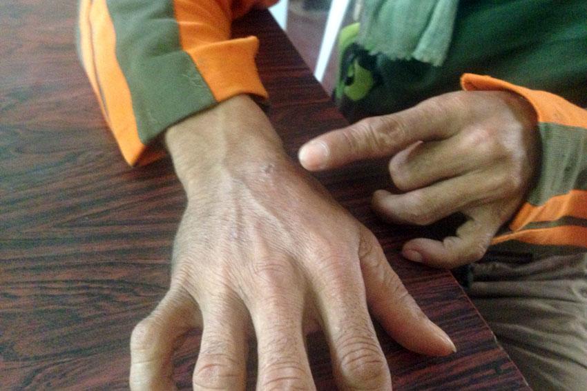 Farmer tortured for 'bringing rice for rebels'