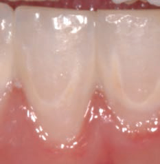 Improve outcomes with minimally invasive dentistry for Art a minimal intervention approach to manage dental caries