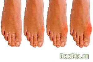 podagra-lechenie-simptomi