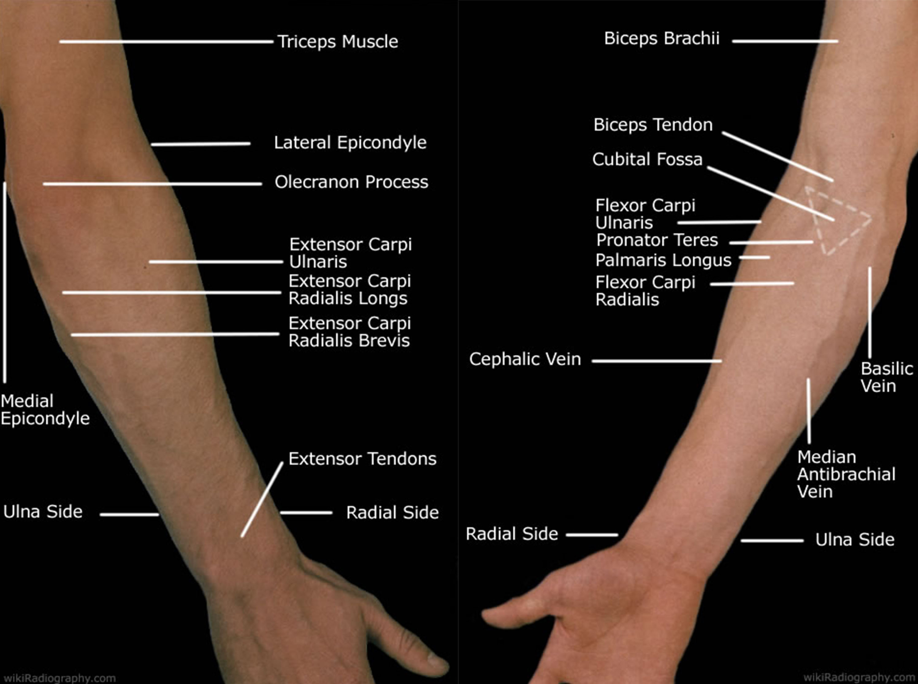 Forearm Pain Relief Cause And Treatment Deep Recovery