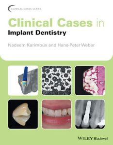 clinical-cases-in-implant-dentistry