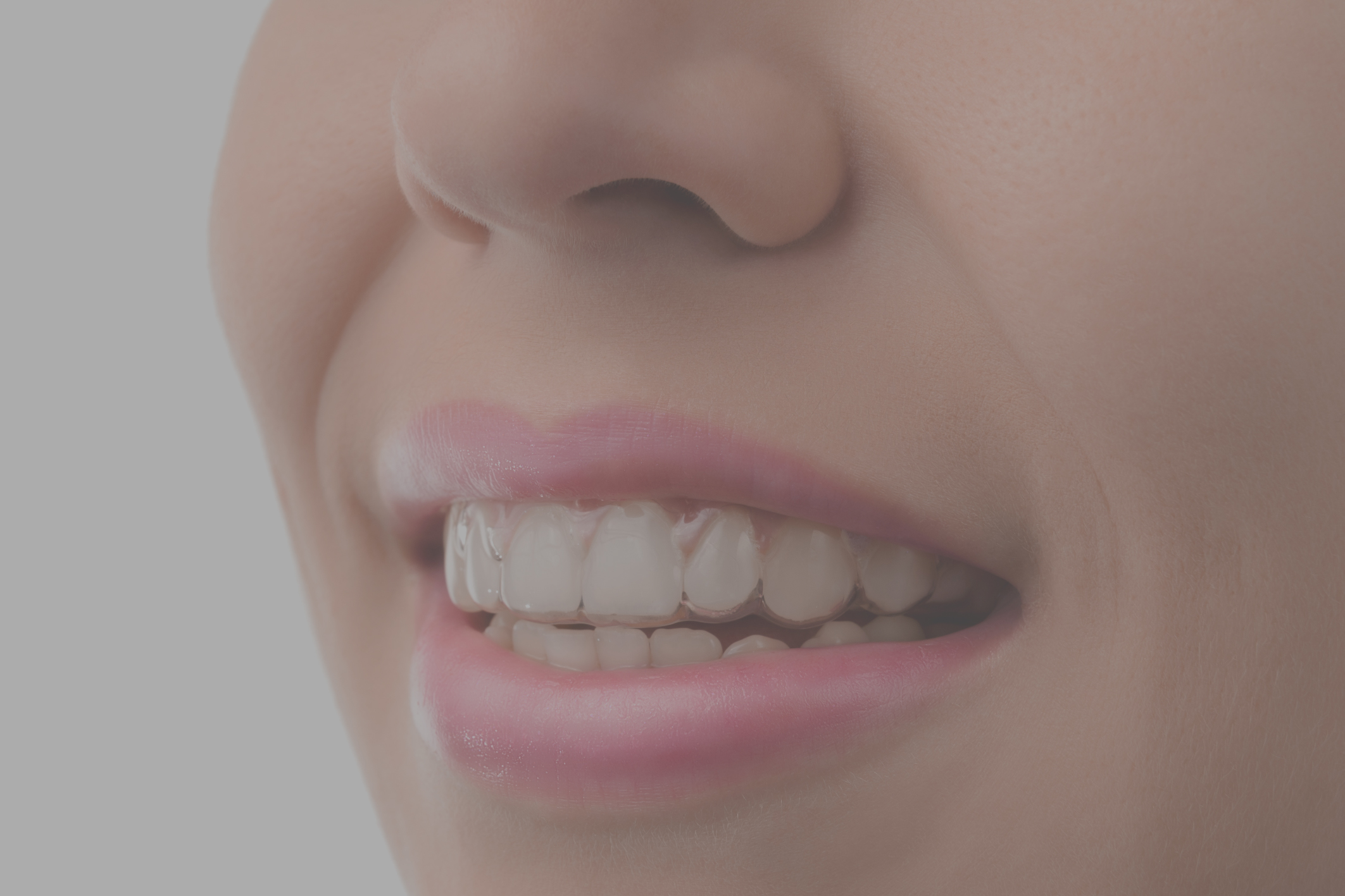 Aparatos Dentales Invisibles Invisalign Vs Normal Braces Why Choose Invisalign