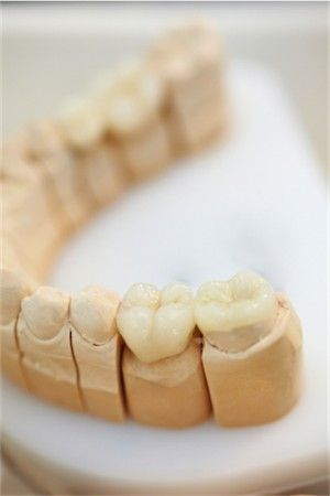 Inlays and Onlays - Dental Health Today Dental Health Today