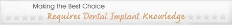 Making the Best Choice Requires Dental Implant Knowledge