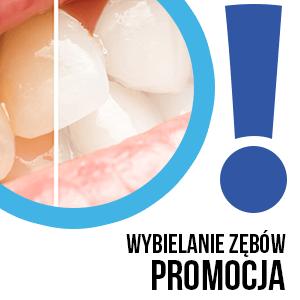 wybielanie zębów promocja