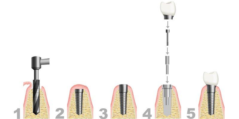 stomatolog warszawa implant
