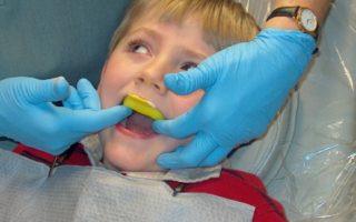 Dentalogy Dental Care - Aplikasi Fluor 4