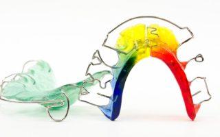 Dentalogy Dental Care - Kawat Gigi Anak 6