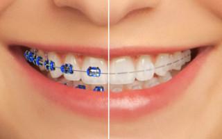 Dentalogy Dental Care - Kawat Gigi Ceramic vs Metal 2