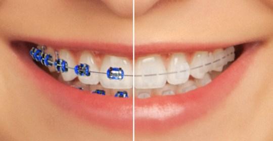 Kawat Gigi (Orthodontic Treatment)
