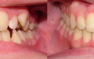 Dentalogy Dental Care - Kawat Gigi, behel gigi 12