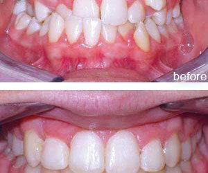 Dentalogy Dental Care - Kawat Gigi, behel gigi 17
