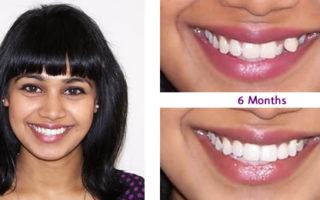 Dentalogy Dental Care - Kawat gigi, behel gigi 2