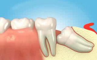 Dentalogy Dental Care - Operasi Gigi Bungsu, Wisdom Tooth 10