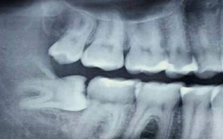 Dentalogy Dental Care - Operasi Gigi Bungsu, Wisdom Tooth 19