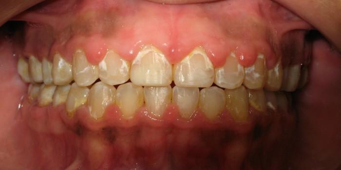 Dentalogy Dental Care - Pembersihan karang gigi, teeth scaling polishing 14