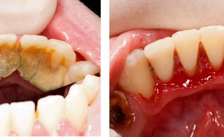 Dentalogy Dental Care - Pembersihan karang gigi, teeth scaling polishing 3