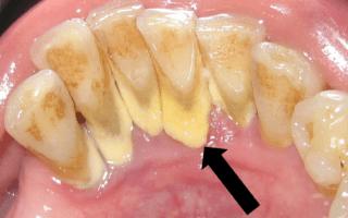 Dentalogy Dental Care - Pembersihan karang gigi, teeth scaling polishing 4