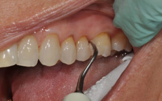 Dentalogy Dental Care - Pembersihan karang gigi, teeth scaling polishing 8