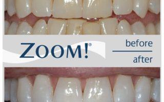 Dentalogy Dental Care - Pemutihan Gigi, Philips Zoom 10