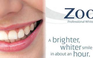 Dentalogy Dental Care - Pemutihan Gigi, Philips Zoom 11