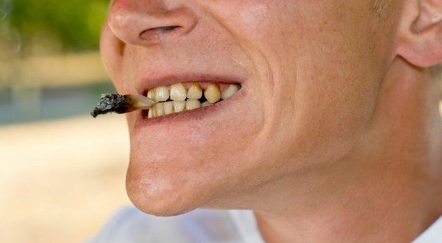 Dentalogy Dental Care - Perawatan Gigi Perokok 1