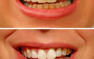 Dentalogy Dental Care - Perawatan Gigi Perokok 6