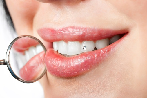 Dentalogy Dental Care - Perhiasan Gigi, diamond tooth 3