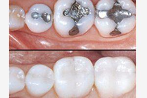 Dentalogy Dental Care - Tambal Lubang Gigi Estetik 9