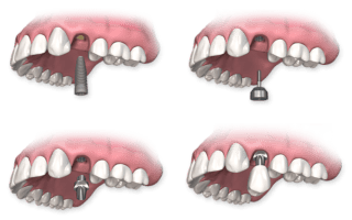 Dentalogy Dental Implant - Implan Gigi10