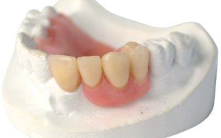 Dentalogy Denture - Gigi Palsu Lepasan 13