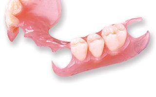 Dentalogy Denture - Gigi Palsu Lepasan 3