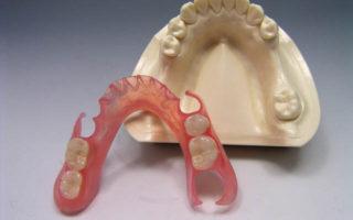 Dentalogy Denture - Gigi Palsu Lepasan 4