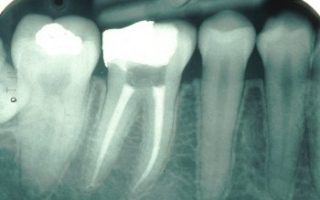 Dentalogy Root Canal Treatment - Perawatan Saluran Akar 2