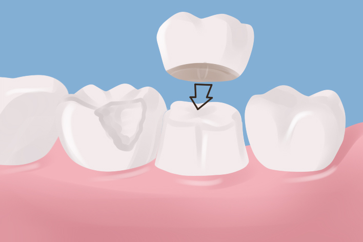 dental-crowns