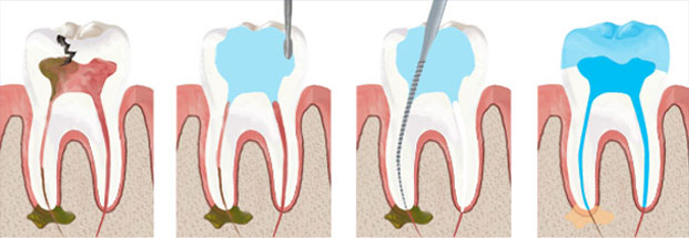 root-canal-filling