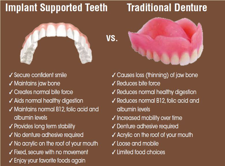 Dentures What is the best solution for your specific need?