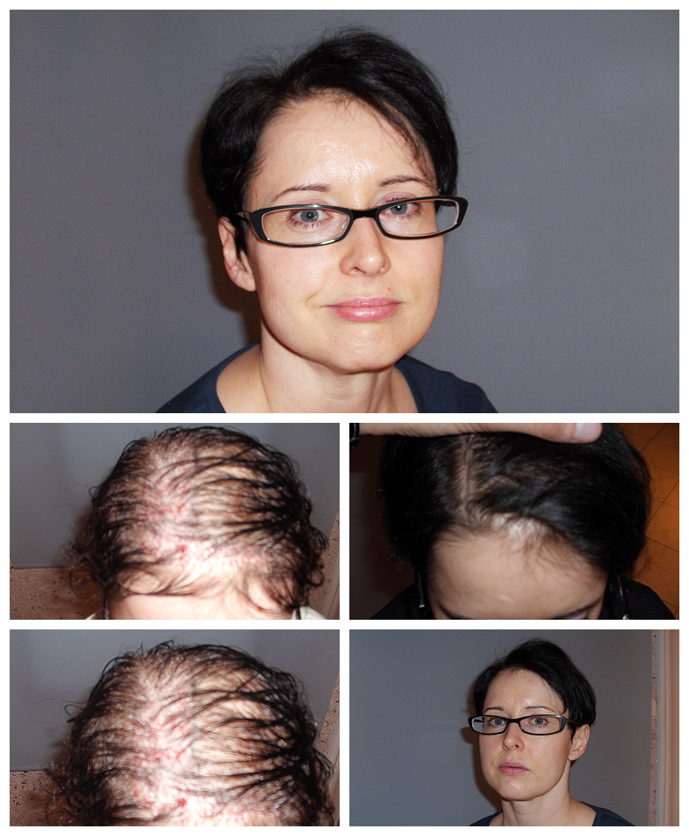 Haartransplantation Hamburg Haartransplantation In Wien Bei Dermacare