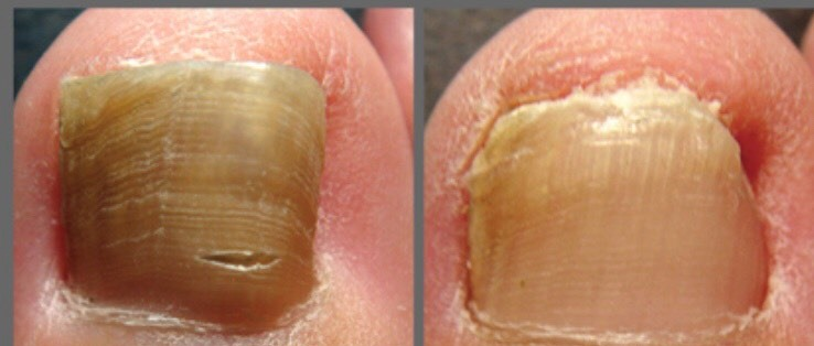Candida Albicans Nails Treatment Nail Ftempo