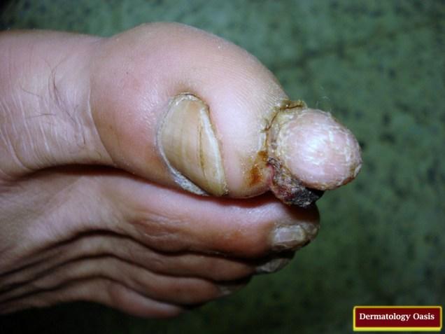 Acral fibrokeratoma