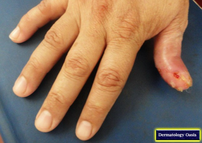Acrodermatitis continua suppurativa2
