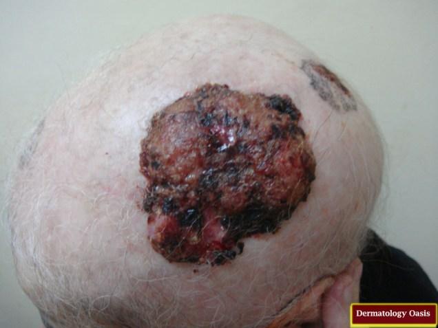 Basisquamous cell carcinoma