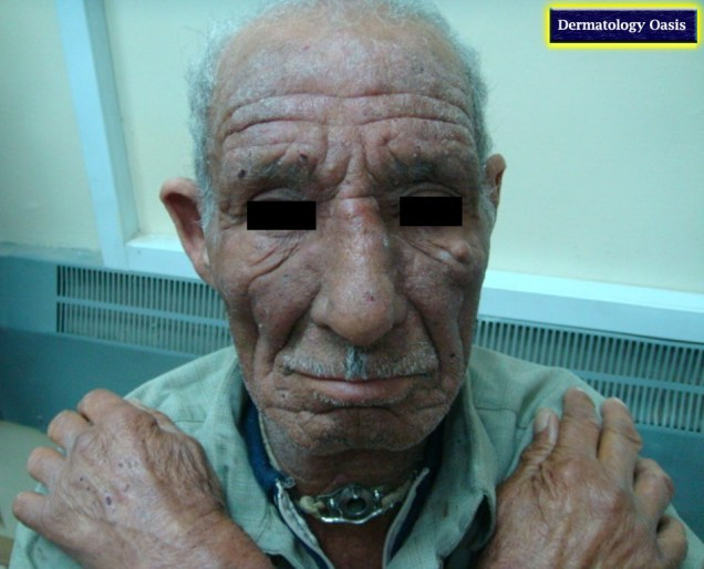 Chronic actinic dermatitis