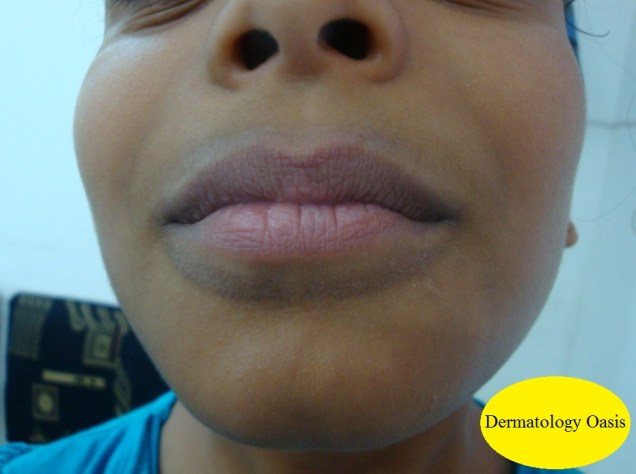 Lip lick dermatitis