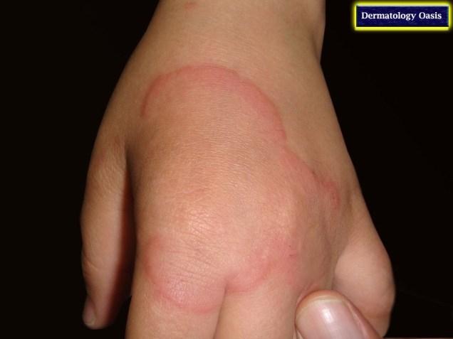 Erythema annulare centifugum