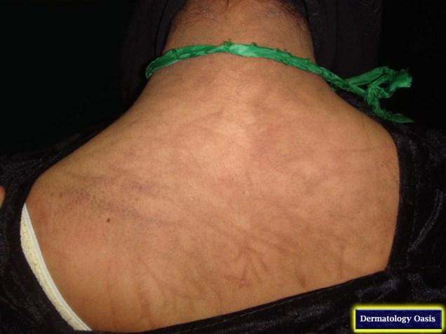 Flagellate hyperpigmentation