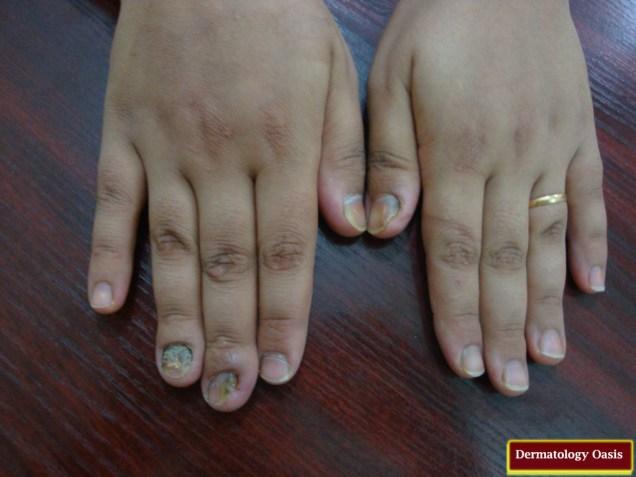Onychomycosis (Tinea Unguium)